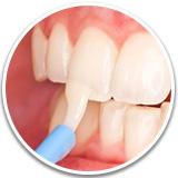 Фторирование зубов после чистки