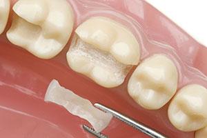 Вкладки для зубов