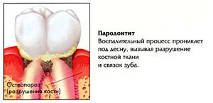 Лечение заболеваний дёсен