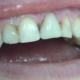 Полное восстановление коронки 21 зуба с помощью композитного материала.