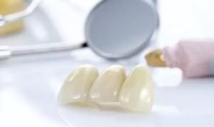 zubnye-vkladki-2