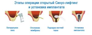 Операция синус-лифтинг
